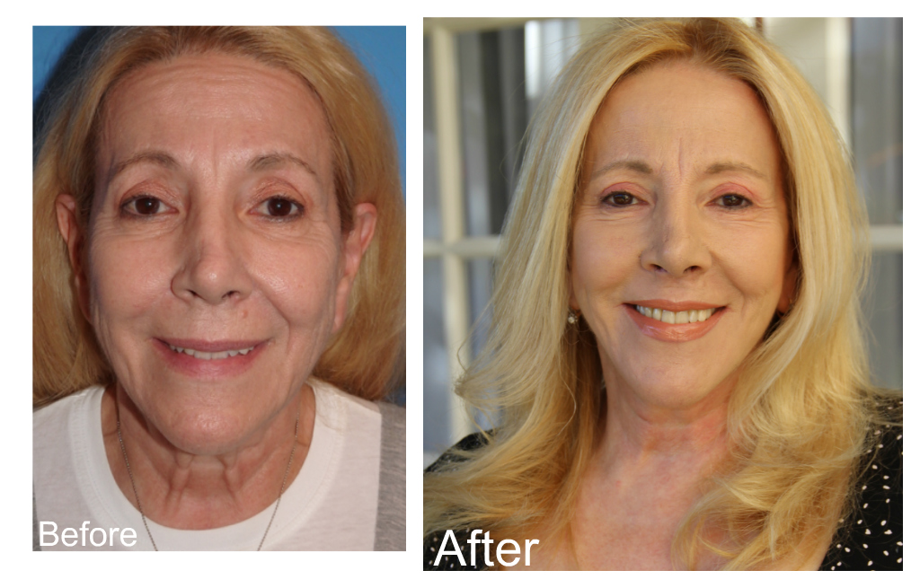 Michele Elyzabeth, dr. George sanders, face lift, neck lift, before and after