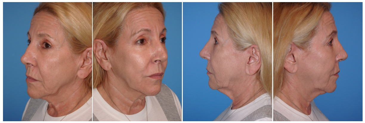 dr. George sanders, Michele Elyzabeth, face lift, neck lift