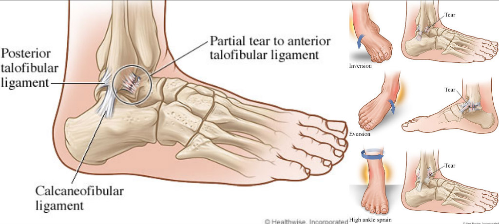 ankle injury prevention